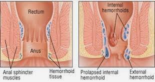 obat wasir atau hemorrhoid