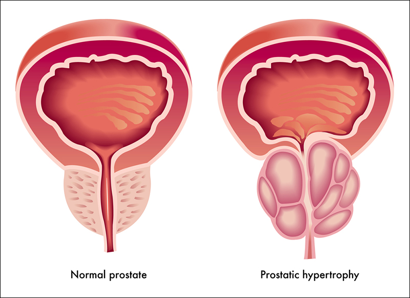 Benign prostatic hyperplasia, diet in prostate problem, prostate enlargement diet