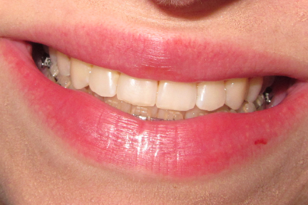 how to smile after braces