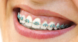 Analromero - Como alinear los dientes en casa sin brackets ...