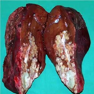 Resiko Besar Terserang Kanker Hati