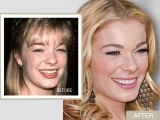 Chatter Busy Leann Rimes Plastic Surgery