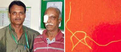 Gambar Kiri : Dr V Seetharaman (kiri) bersama pesakitnya, P. K. Krishnamurthy, selepas rawatan pada matanya. Gambar Kanan: Cacing sepanjang 5 inci yang keluarkan dari mata Krishnamurthy. [Google]
