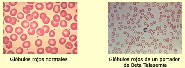Hemoglobina fetal y hemoglobina materna General
