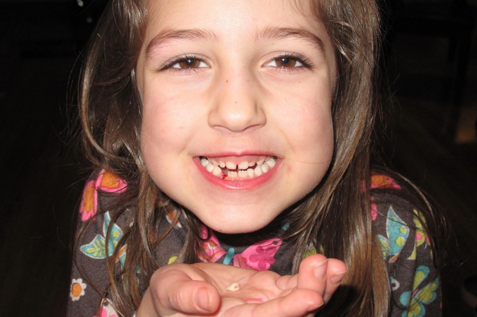 http://4.bp.blogspot.com/-YXE-2jfvdTg/UQiSDapiEZI/AAAAAAAAMSc/dqEt2-jL4Fo/s1600/third+tooth_20130129_1.JPG