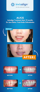 www.imjustsayindamn.blogspot.com, Invisalign Before & After