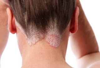 skin cancer scalp