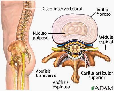 Las complicaciones de la hernia del departamento de pecho