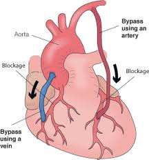 Affordable heart bypass surgery