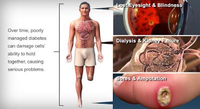 MENGAWAL MASALAH PENYAKIT DIABETES DARI AWAL AGAR TIDAK MELARAT DENGAN SHAKLEE
