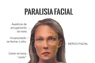 Fisioterapia e Fonoaudiologia para Paralisia Facial