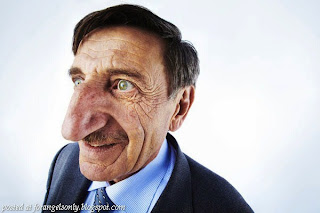 World's Longest Nose – Mehmet Ozyurek, Turkey