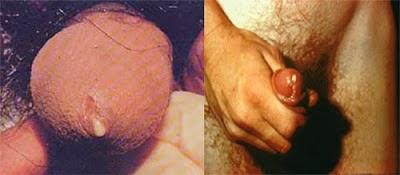 http://www.apotikherbal.net/2014/09/cara-mengobati-penyakit-kelamin-sipilis71.html