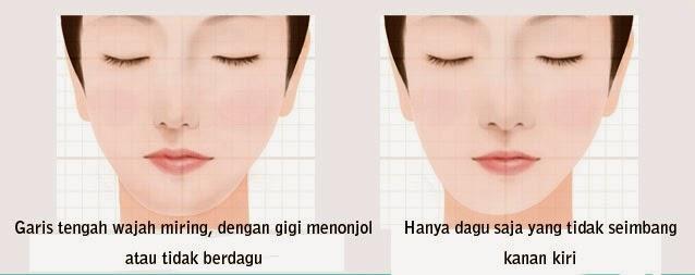contoh bentuk wajah asimetris
