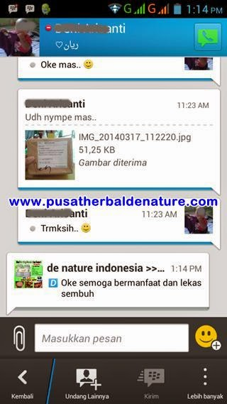 Image Kumpulan Obat Kutil Kelamin Herbal De Nature