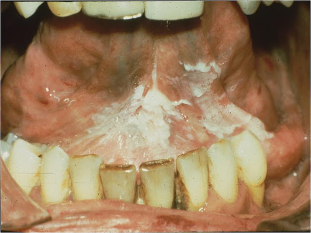 Dentistry lectures for mfds mjdf nbde ore facts on for Floor of mouth