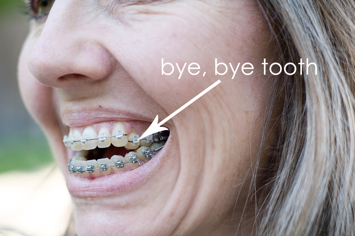 Braces and Wrinkles: a few changes