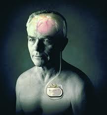 Marcapasos cerebral - curiosidades