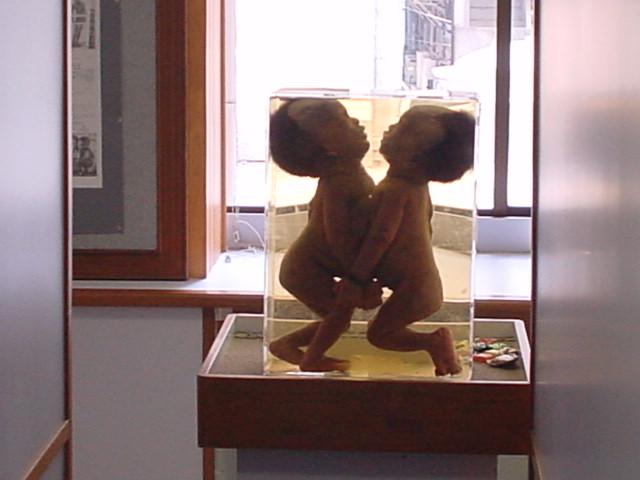 Museums and Art Centres in Bangkok: Siriraj Medical Museum ...
