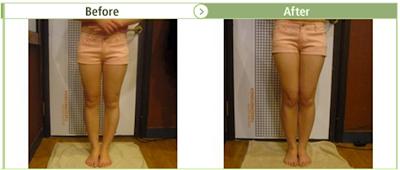 Bow Leg correction