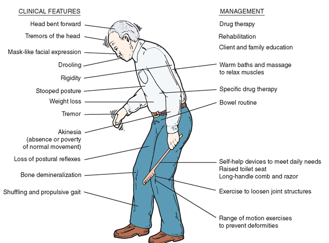 the features of parkinsons disease Features of parkinsons disease the diagnosis of classic idiopathic pd is primarily clinical, with manifestations including resting tremor, muscular rigidity, bradykinesia, and postural instability  additional features are characteristic postural abnormalities, dysautonomia, dystonic cramps, and dementia.