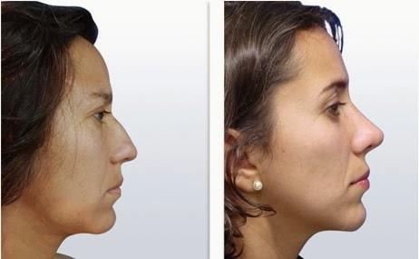 10 curiosidades que no sabías sobre tu nariz