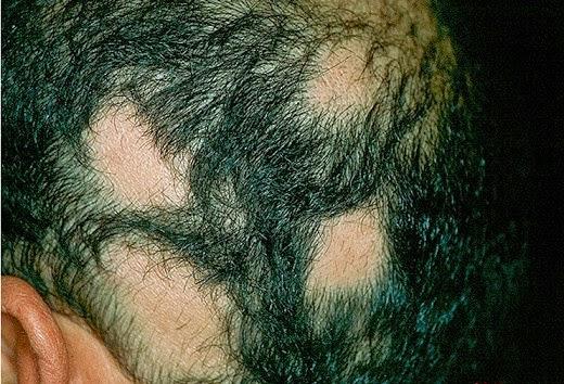 equine alopecia