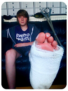broken foot in plaster