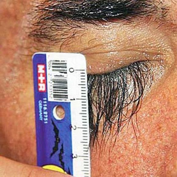 قياس طول الرموش
