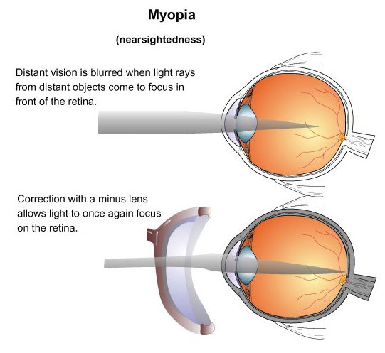 Correct Eyesight Without Prescription Glasses