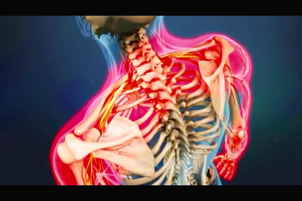 Hernia discal – ONA QUIROPRÁCTICA Barcelona Tratamiento y cuidado de ...
