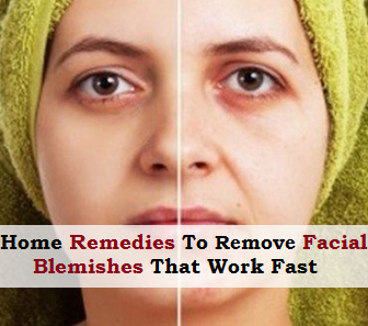 Home Remedies To Remove Facial Blemishes That Work Fast