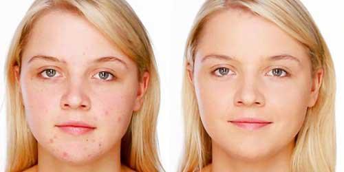 antes y despues de tapar granitos con maquillaje