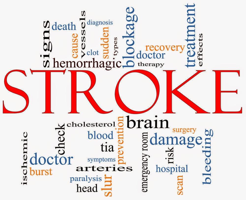 serangan stroke