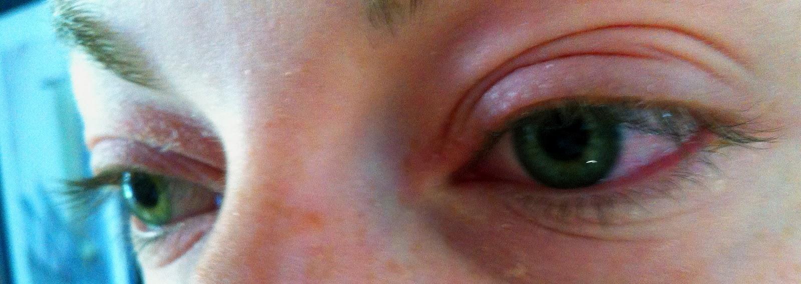 Nokkosihottuma silmäluomet