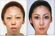 Jian Feng wife. Man sue wife for being ugly and won the case