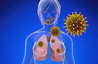 Penyakit Mers CoV Penyebab Tanda Gejala Virus Mers