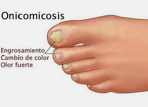 El hongo de la piel de los dedos de las manos cerca de las uñas