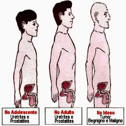 Cancer de prostata, pesquisa geneticas ajudam a cura