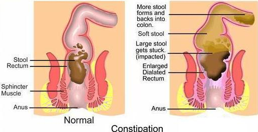 Constipation Causes and Symptoms