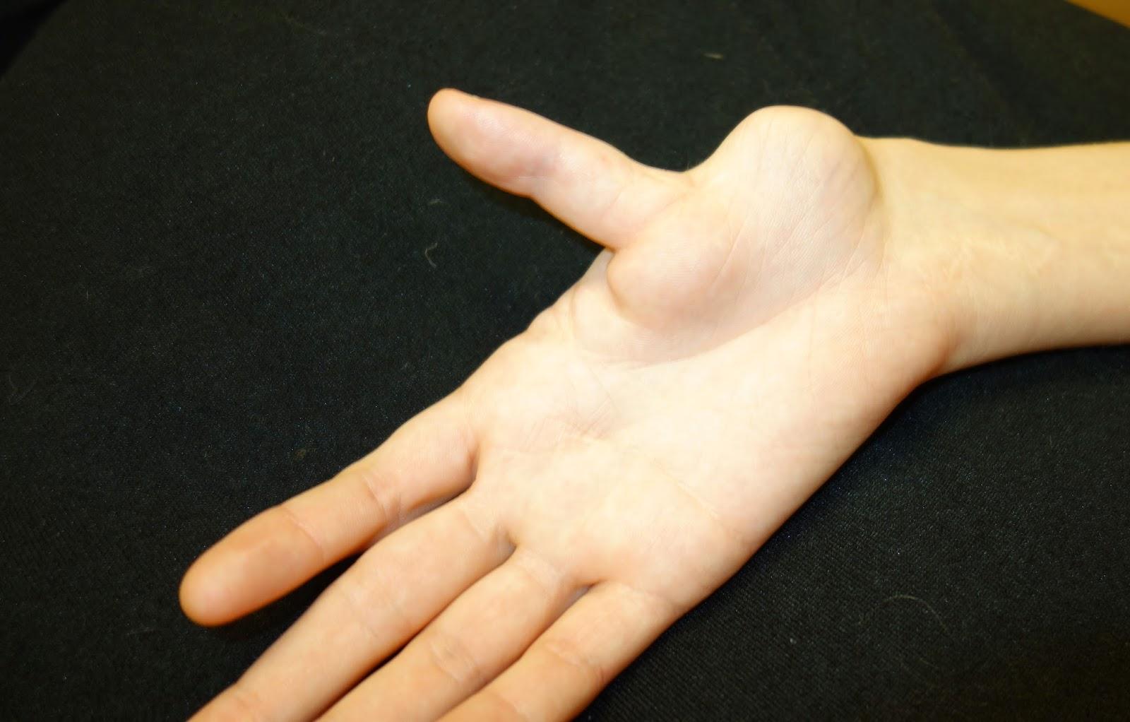 Tiny thumbs xxx pic 85