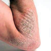 cara mencegah dermatitis eksim