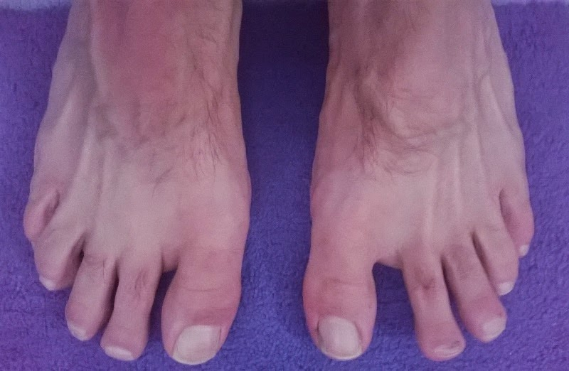 cuidados basicos de los pies