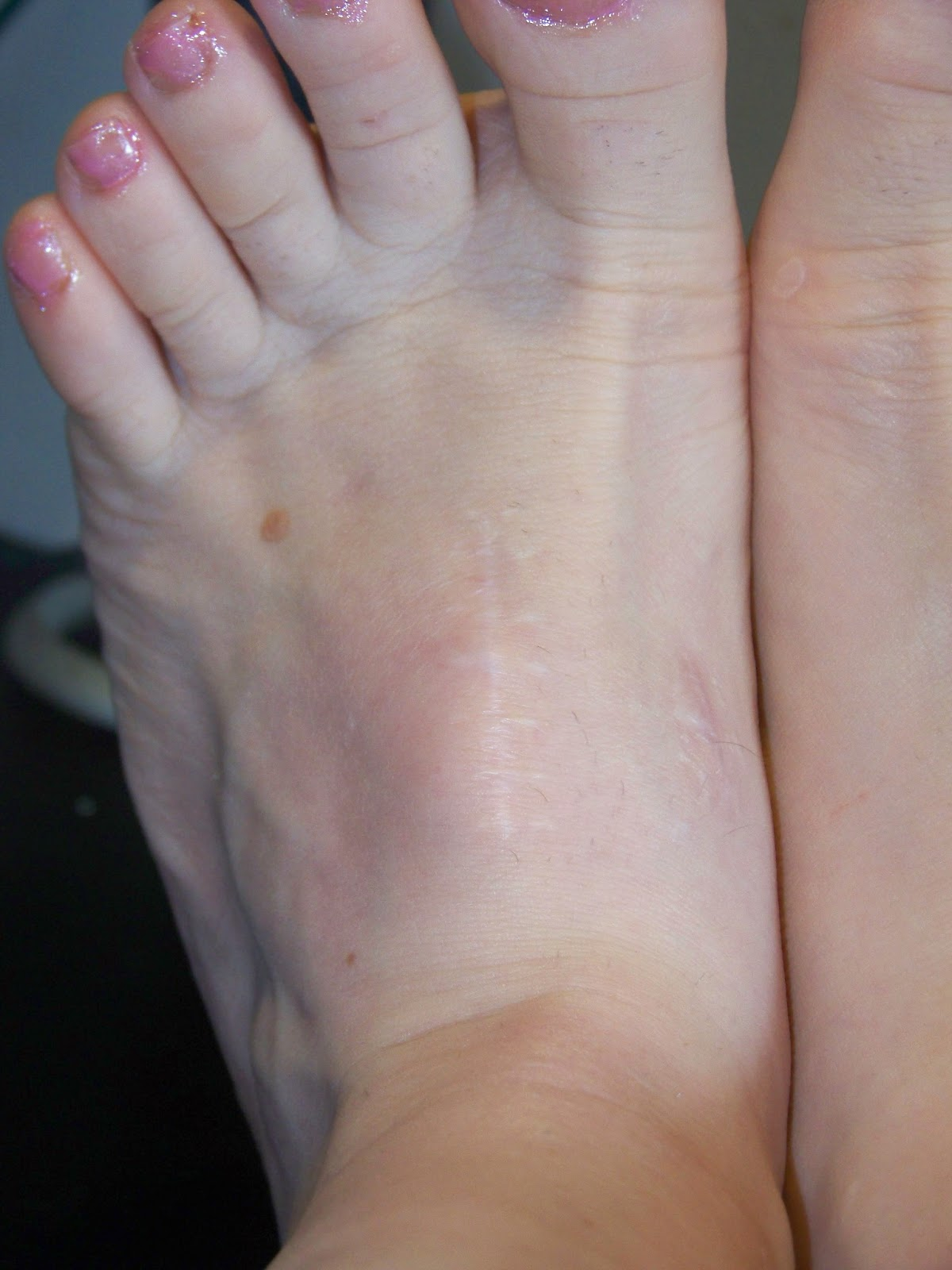 Hand, foot, and mouth disease - Wikipedia