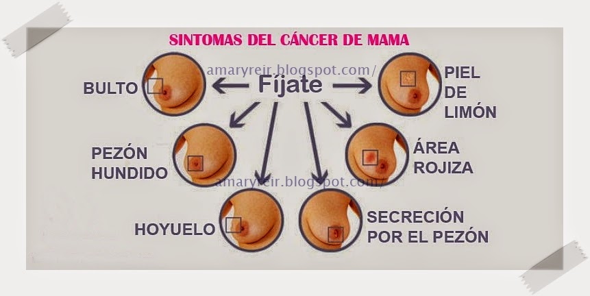 Top Cancer De Mama Sintomas Iniciales Images For Pinterest Tattoos
