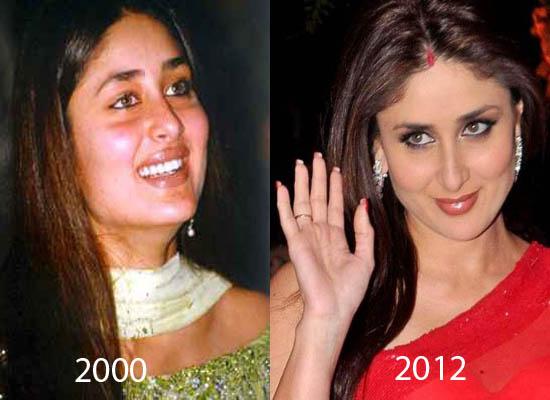 Chatter Busy Kareena Kapoor Plastic Surgery