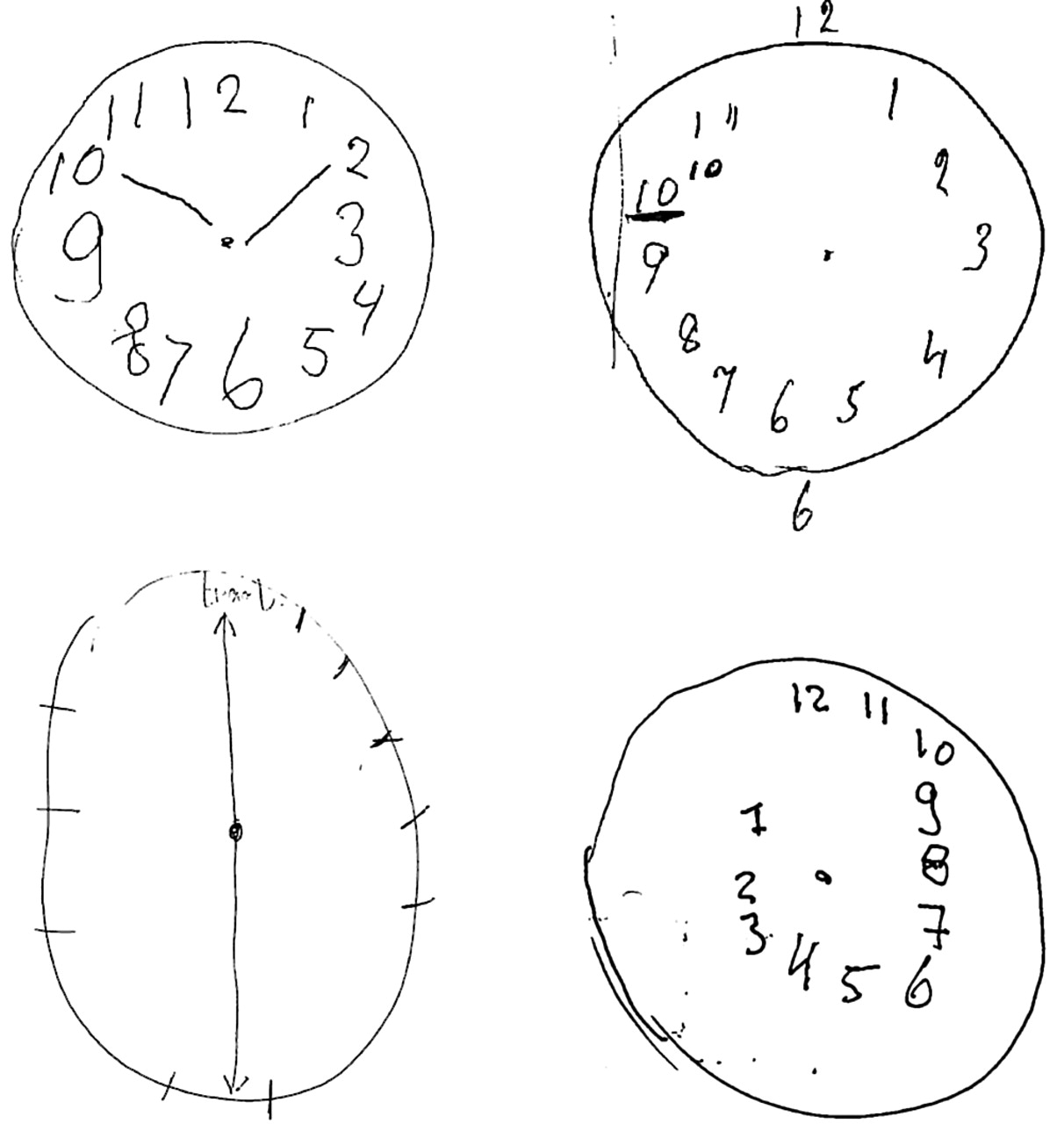 Dementia Clocks The Clock Drawing Test