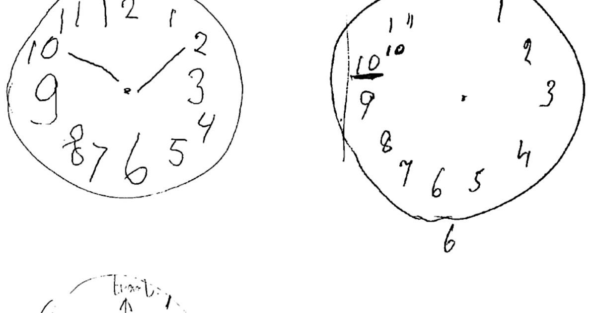 Scribble Drawing Quiz : Sleep and neurology dementia clocks