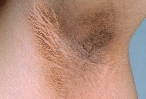 m h photo of acanthosis nigricans Urticaria, commonly known as hives, are raised red bumps of various shapes ...