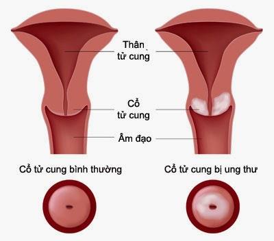 Cách phòng ngừa bệnh ung thư cổ tử cung